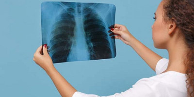 3 Latihan Pernapasan untuk Penderita Fibrosis Paru Akibat Covid-19